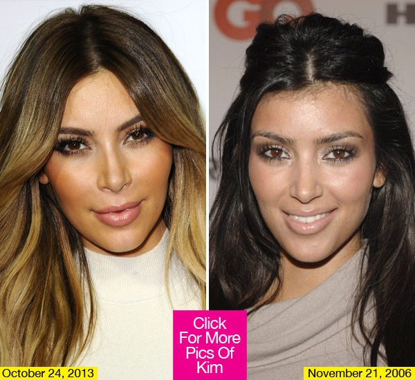 kim-kardashian-botox-overload-getty-lead